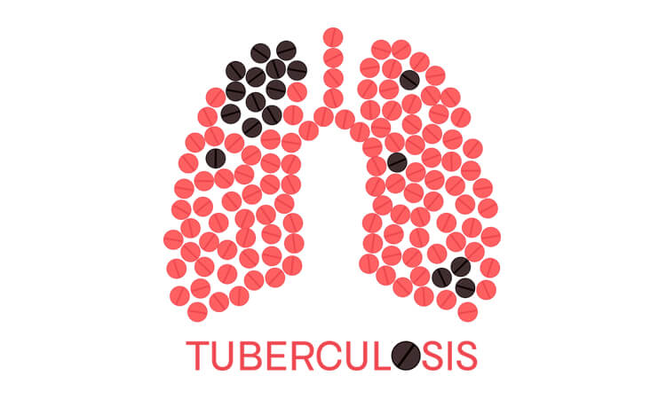 All you need to Know about Tuberculosis