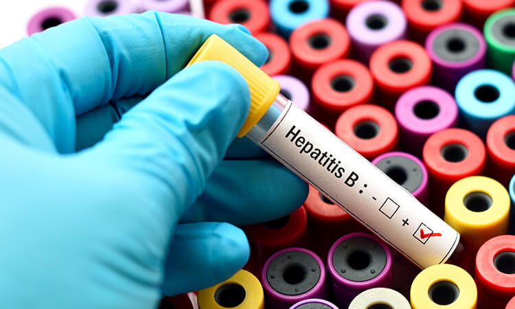 Everything you should know about Hepatitis B on this World Hepatitis Day